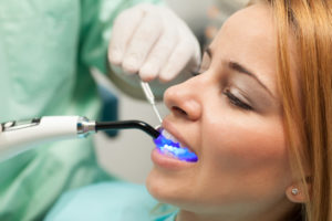 Your dentist in Asheville hopes to catch any dental issues early on with excellent advanced preventive care.
