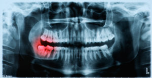 X-ray of wisdom tooth