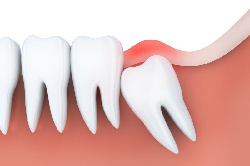 Wisdom Tooth Extraction In Asheville Impacted Teeth John White Dds